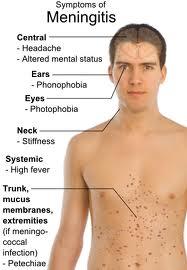 Meningitis In Adult 117